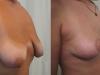 Operatie Sani Femei la DR Jecan