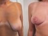 interventie mamoplastie