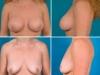Implant Mamar Anatomic Poze