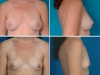 Implanturi Mamare Anatomice Poze