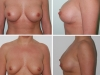 Operatii Estetice Sani in Rate