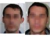 Caz 2 - adult sex masculin, 30 ani, deformatie unilaterale, aspect preoperator si postoperator