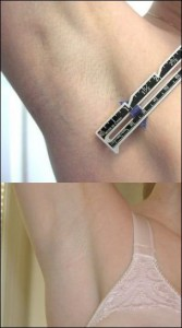 Incizie Axilara la Implant cu Silicon