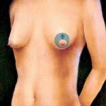 marirea sanilor - mamoplastie circumareolara