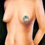marirea sanilor - mamoplastie verticala
