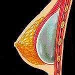 implanturi mamare - plan dual