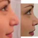 operatie estetica la nas