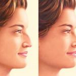 operatii estetice la nas