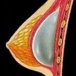 implanturi mamare - implant submuscular
